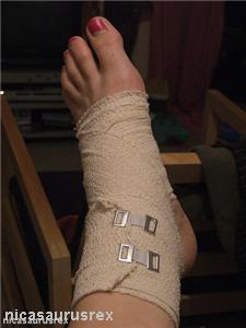 Testing for foot conditions may help athletes heal