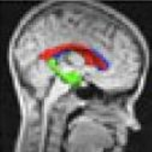 MRI tests identify common symptom of autism
