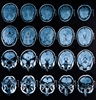 Concussions may be related to Alzheimer's disease
