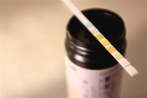 Increased funding makes HIV tests more available