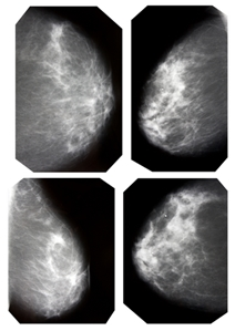 New method measuring breast density could improve screening processes