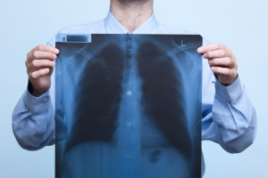 There are a number of ways people can come down with lung cancer, but regardless of the methodology, catching it early is key to recovery.