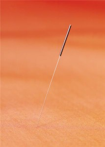 Acupuncture can reduce side effects in men being treated for prostate cancer