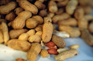 Food allergies are most common in urban youths