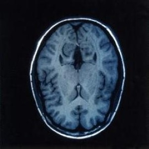 Researchers may know why HIV leads to dementia in some patients.